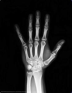 Mano rayos x